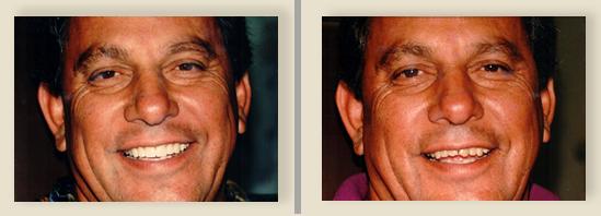 לפני השתלה שיניים ואחרי