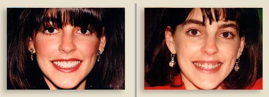 לפני ואחרי השתלת שיניים לנשים