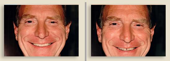 לפי ואחרי השתלת שיניים לגברים