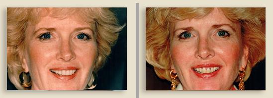 לפני ואחרי השתלת שיניים